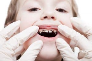 prevent tooth decay | Simply Dental Chatswood
