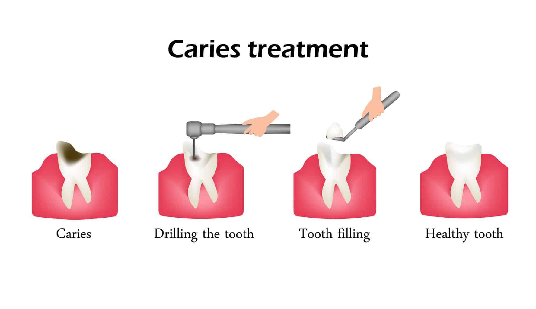 Caries-Treatment.jpg