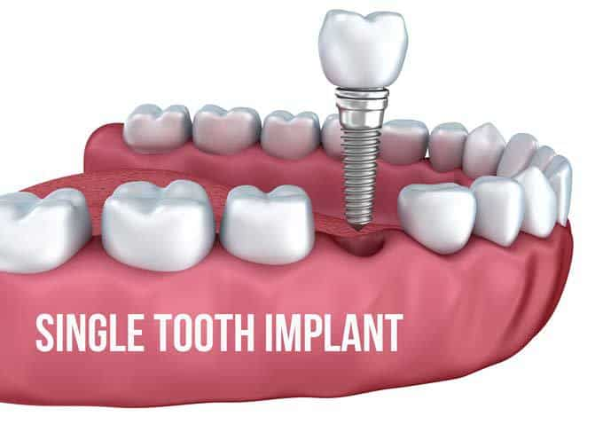 Dental Implant Surgery Cost