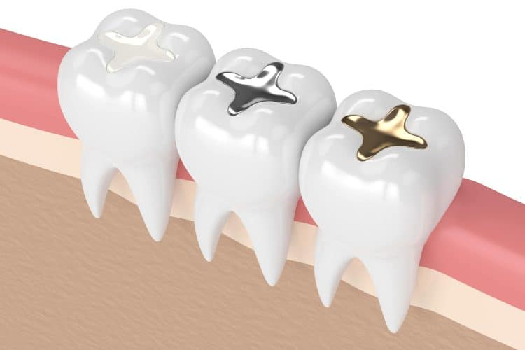 dental-filling